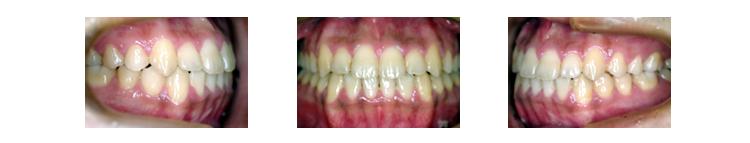顎の治療を行った後の治療後の咬み合わせ