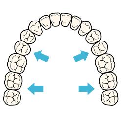 歯列を側方へ拡大する