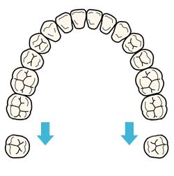 奥歯を後方へ移動する